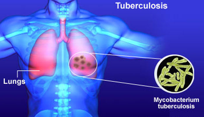 an analysis of the definition cause transmission dangers and awareness of tuberculosis a lung diseas Dls healthcare news april 23, 2015 dls nanoarray analysis is a new campaign aims to bring awareness to the importance of biomarker testing in people.