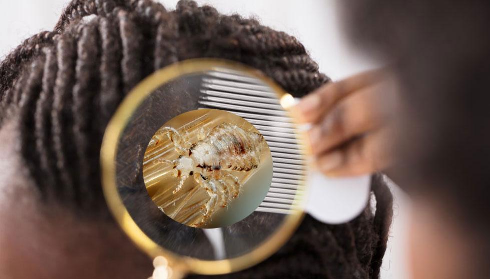 উকুনের সমস্যায় অতিষ্ঠ? জেনে নিন ১০০ শতাংশ কার্যকর ভেষজ প্রতিকার