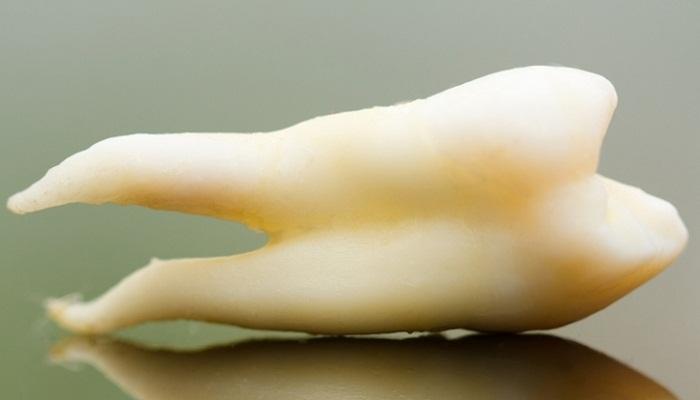 ইয়া বড়! দাঁত তুলে বিশ্ব রেকর্ড গুজরাটের চিকিত্সকের