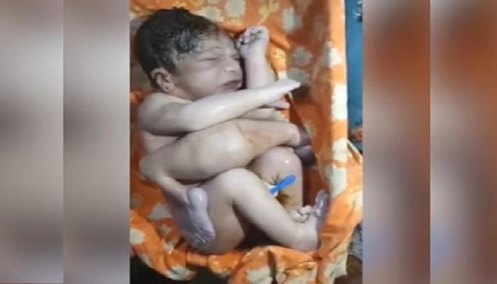 ৪টে পা, ২টি যৌনাঙ্গ নিয়ে রাজস্থানে জন্ম এক 'অদ্ভুতদর্শন' শিশুর (Video)