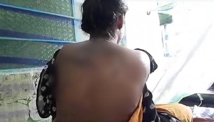 বিয়ের প্রস্তাবে 'না', ঘুমন্ত শ্যালিকার শরীরে অ্যাসিড ঢাললেন জামাইবাবু